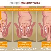 Mastdarmvorfall